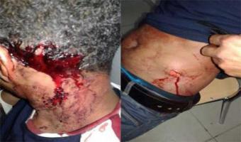 Trois étudiants mauritaniens agressés à l'arme blanche à Tunis