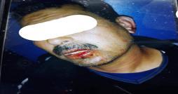 Ksar Saïd : Un gardien d école violemment agressé par un parent d élève (vidéo)