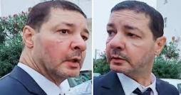 Le président de l'ESS agressé à l'entrée du Stade Ben Jannet de Monastir